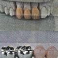 aus keramik; zahn