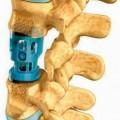 titan; zu medizinischen zwecken; für körperteile